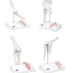 Anatomisch Model Mini Serie (4 Gewrichten)