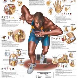 Poster Sportblessures (Dubbelzijdig Gelamineerd)